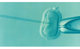 """IVF image."" by CNBP is licensed under CC BY 2.0"